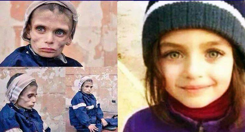 حقيقة صورة مجاعة أطفال مضايا سوريا .
