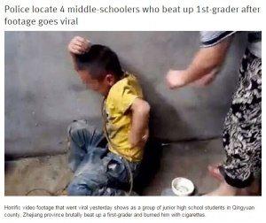 حقيقة تعذيب طفل في بورما