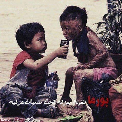 حقيقة صورة طفل محروق من بورما