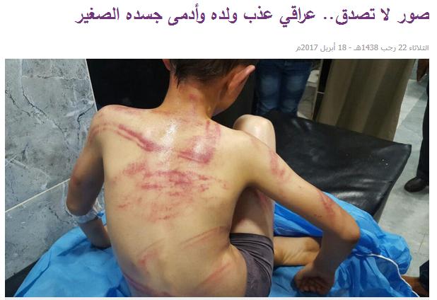 حقيقة صورة تعذيب طفل في السجون المصرية