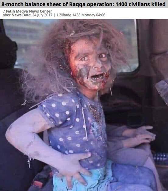 حقيقة صورة طفلة ناجية من الهجوم الارهابي على أتوبيس رحلة دير الأنبا صموئيل