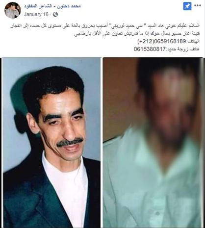 حقيقة صورة أحد مصابي حادثة قطر محطة مصر