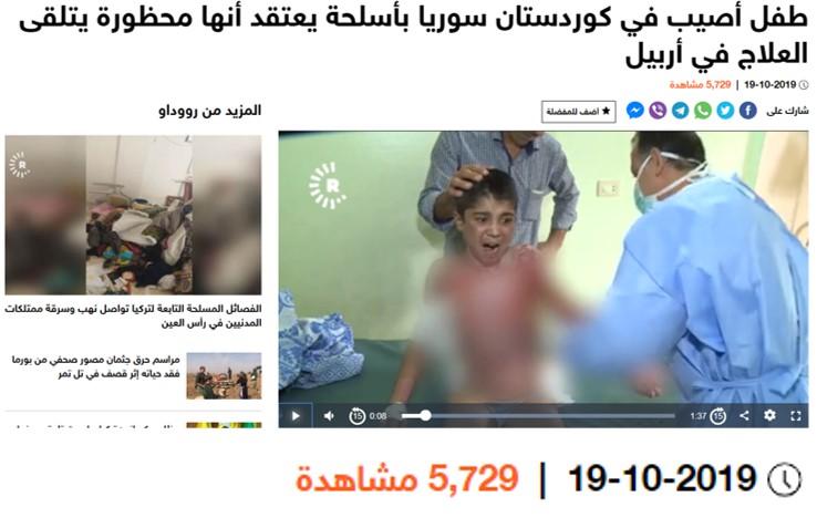 حقيقة صورة طفل مصاب في غزة