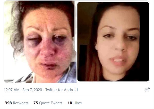 حقيقة صورة المعارضة رضوى محمد بعد تعرضها للتعذيب